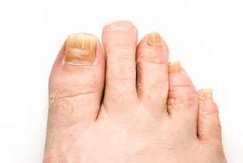 Laser Fungal Nail Treatment Foot Doctor North Andover Ma 01845