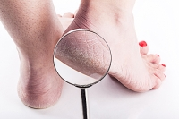 Treating Cracked Heels