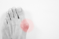 What Is Gout and Why Does It Occur?