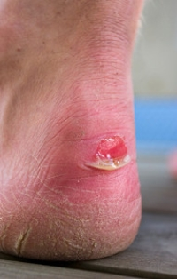 Soccer Players And Blisters