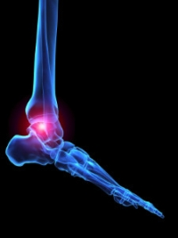 Types of Arthritis That Can Affect the Feet