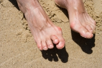 What Does Hammertoe Look Like?