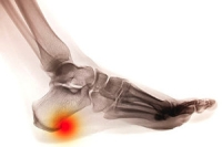 Why It Is Difficult to Detect Heel Spurs